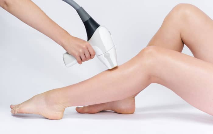 pre laser hair removal image
