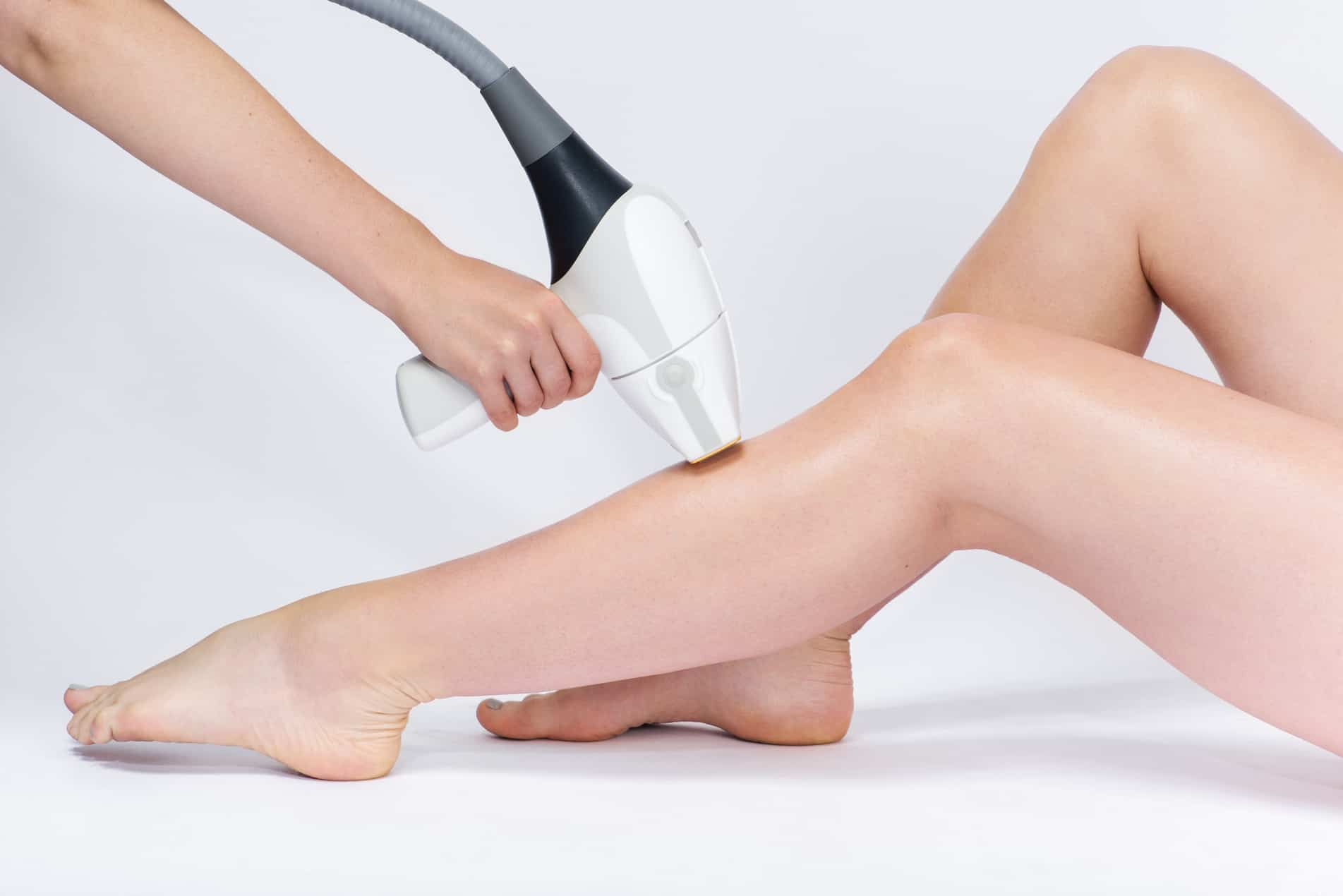 pre laser hair removal image